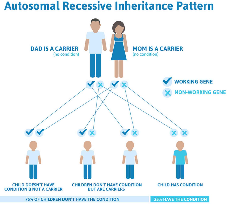 Diastrophic dysplasia autosomal recessive inheritance pattern