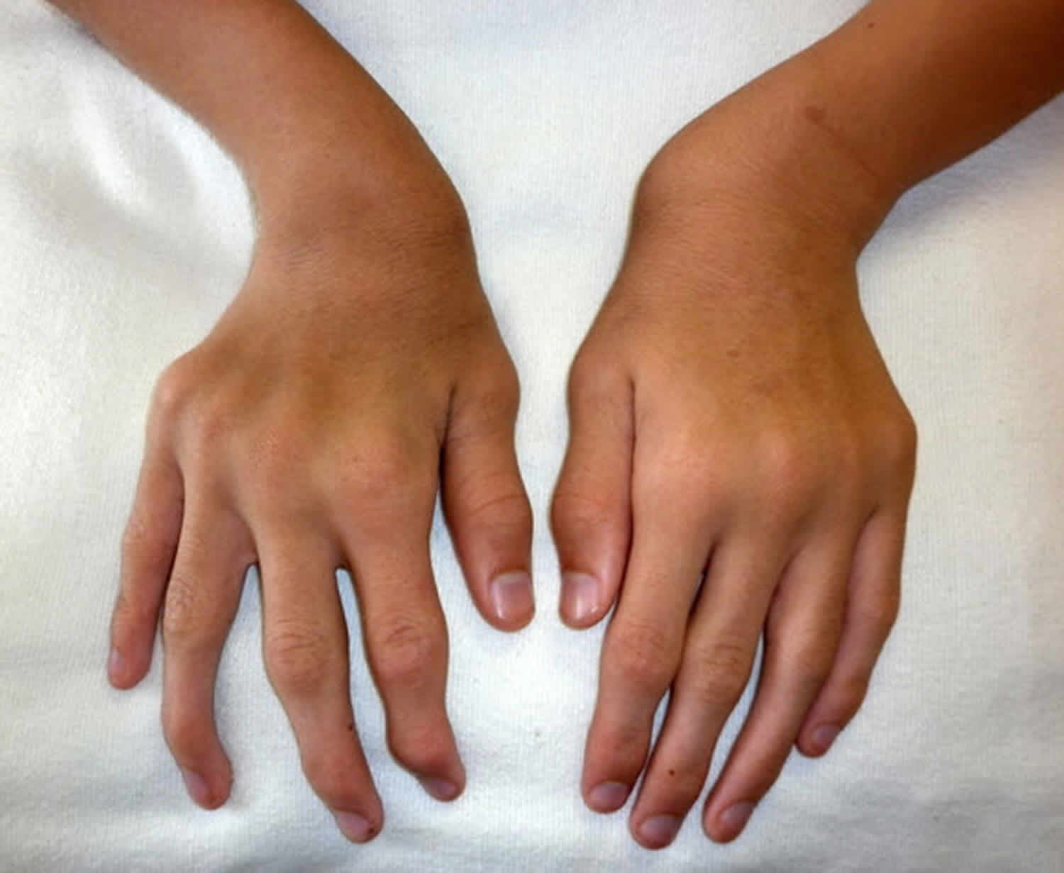 Morquio syndrome ulnar deviation of both wrists and joint enlargement
