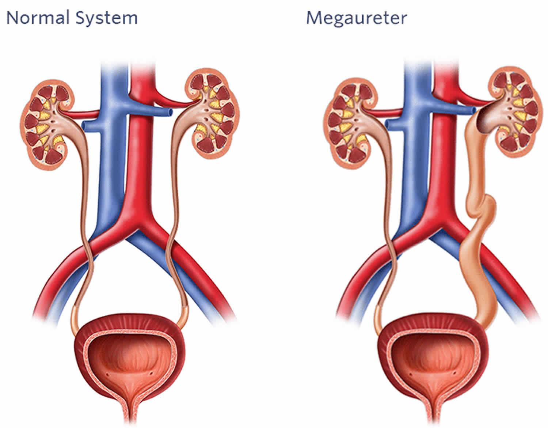 megaureter