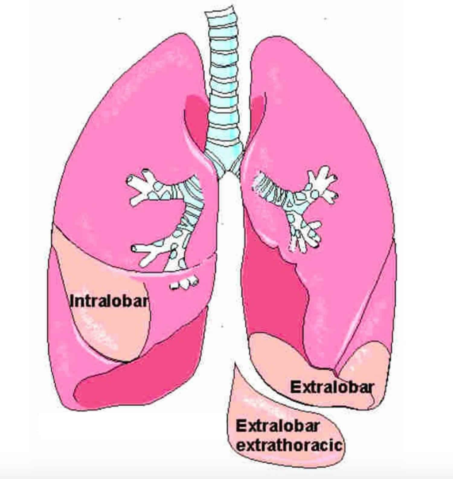 fetal pulmonary sequestration