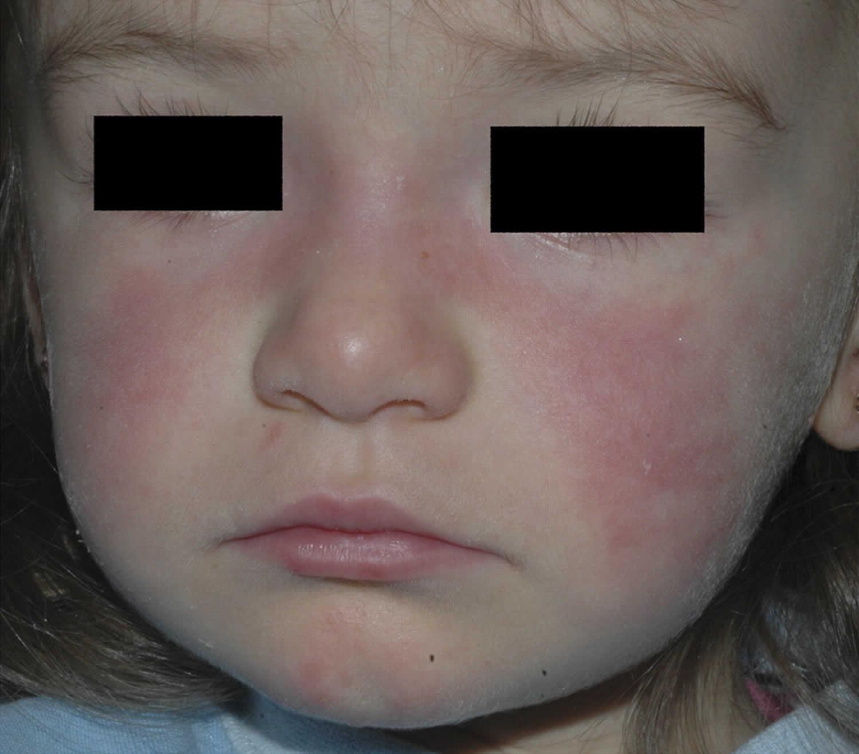 pediatric lupus rash