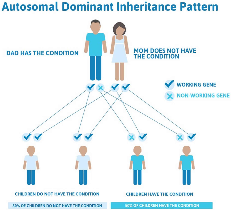 Pseudoachondroplasia autosomal dominant inheritance pattern