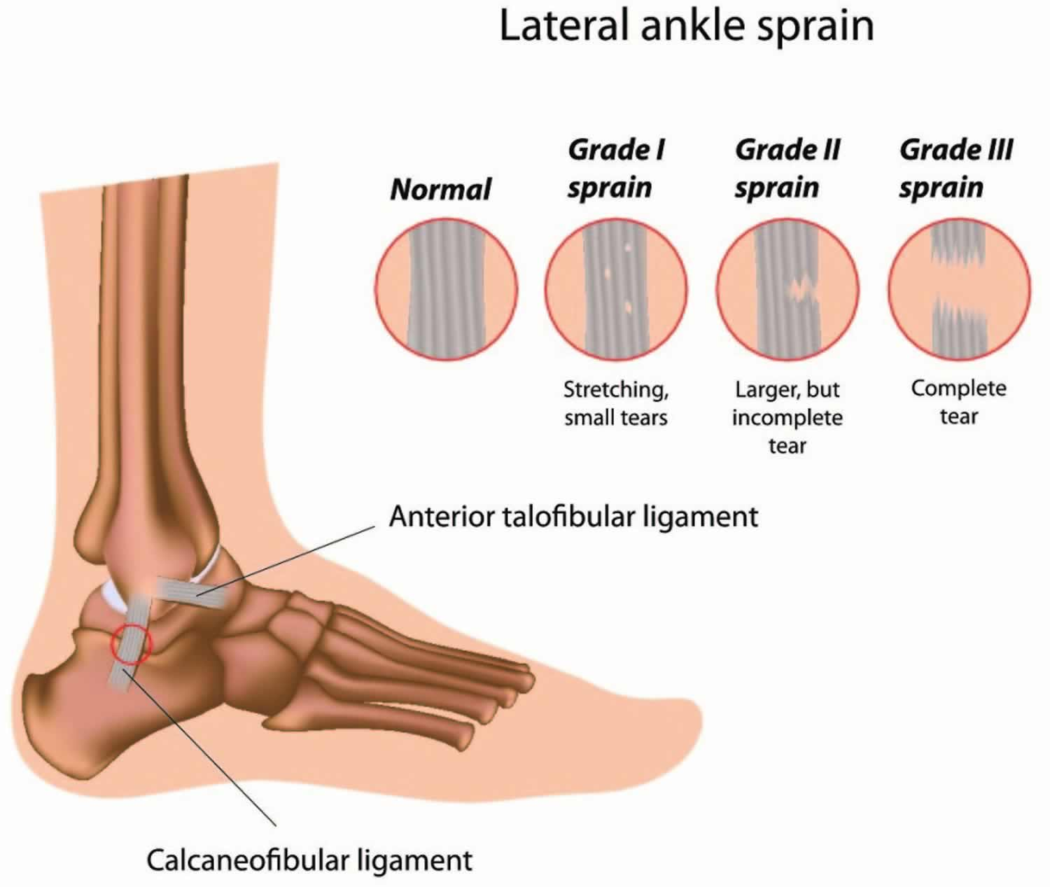 Sprained ankle grades
