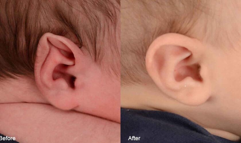 Stahl's ear