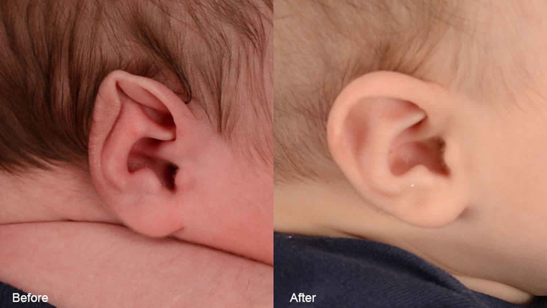 stahl's ear deformity