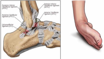 kids sprained ankle