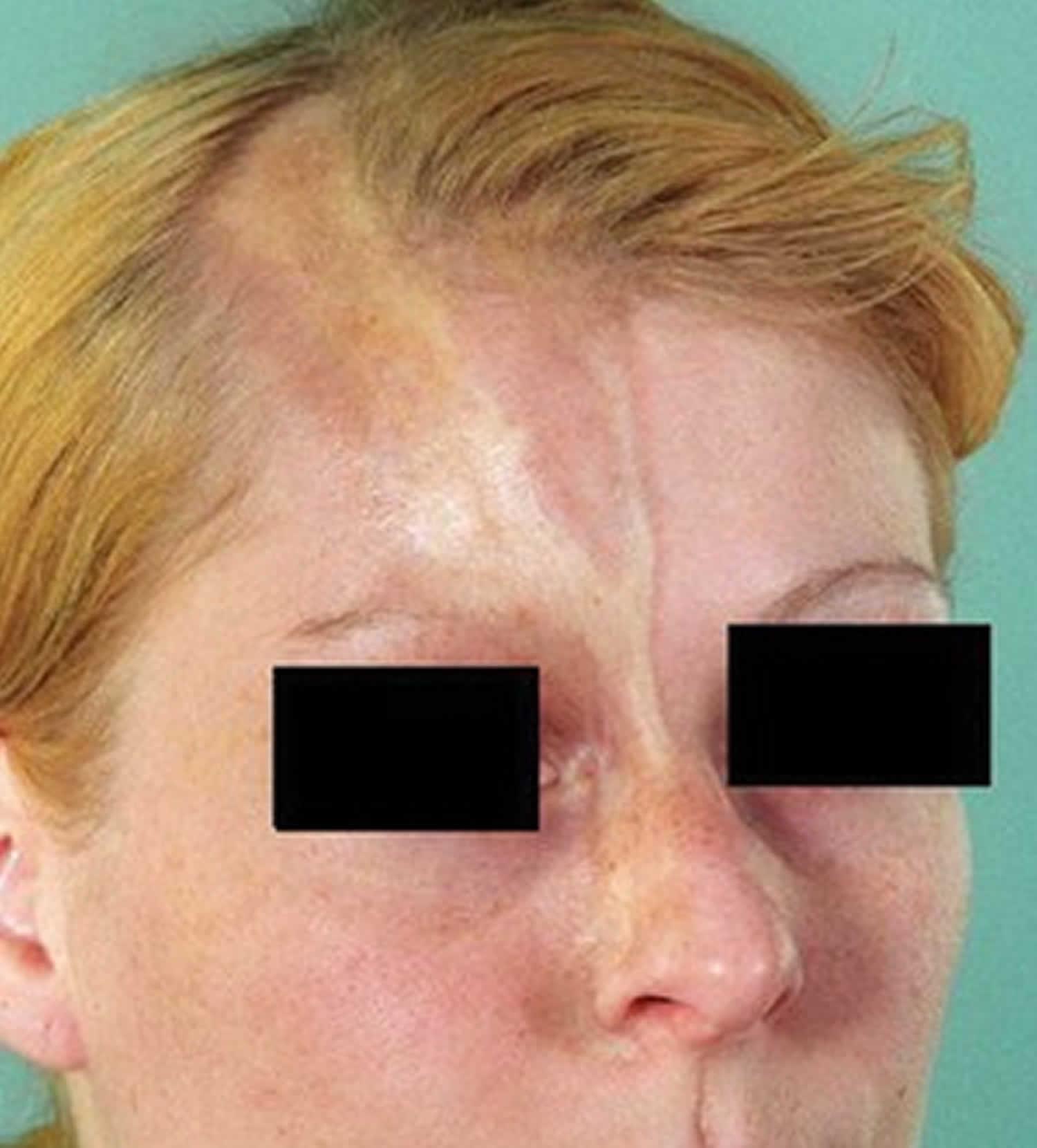 linear scleroderma face