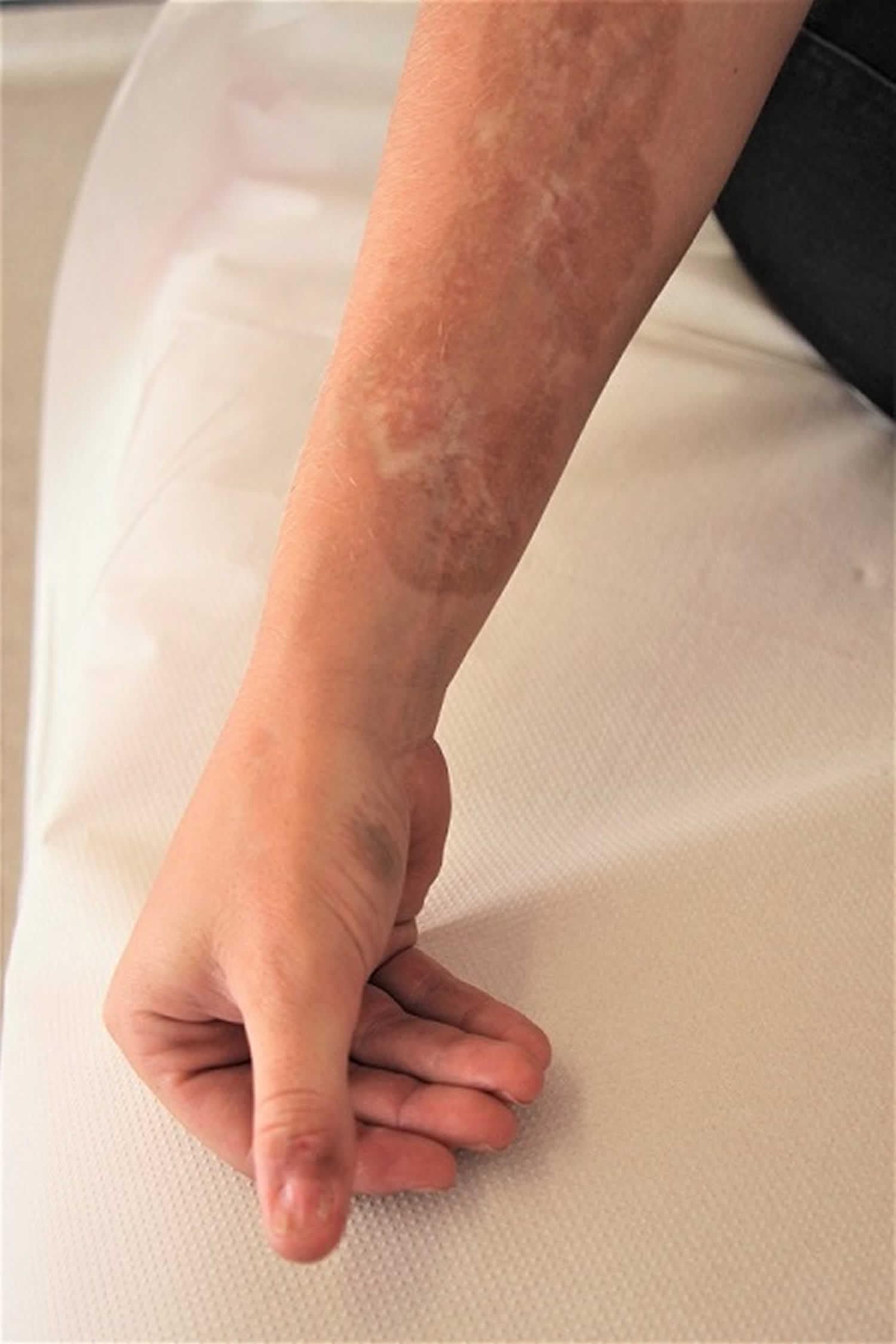 linear scleroderma