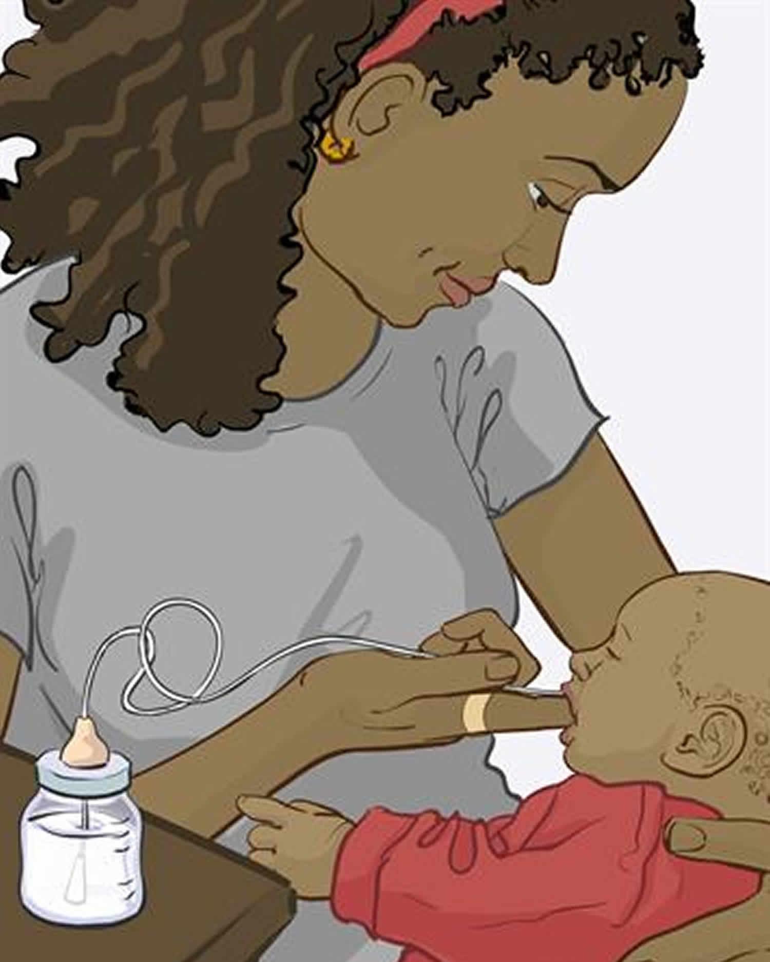 Finger-feeding using a bottle